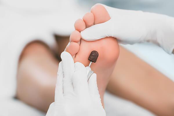 Foto van een pedicure behandeling met eelt verwijderen - studio zilver: pedicure, massage & counseling